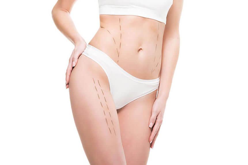 Cirugía plástica corporal Alicante