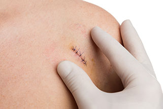 Biopsia de piel punch Alicante